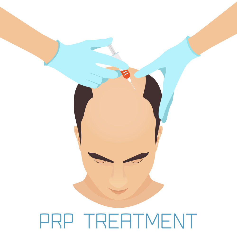 FAQs About PRP Treatment